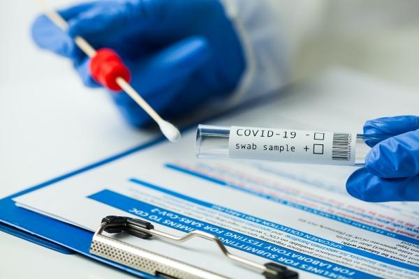 COVID-19 rtPCR+IgM Test (Same Day)