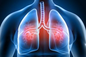 Respiratory Pathogen Panel (RPP)