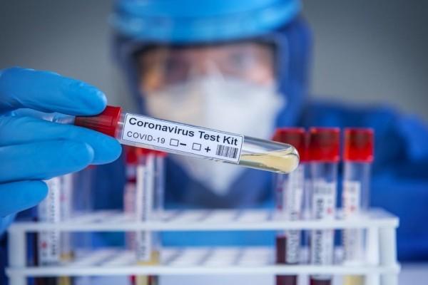 COVID-19 rtPCR+IgM (N) Test (Same Day)